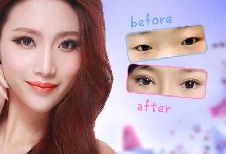 上海韩式微创三点定位双眼皮|韩式微创脱去单眼皮