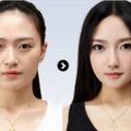 经典艳冠硅胶假体隆鼻 塑造高挺自信