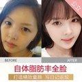 上海自体脂肪填充全脸 公立三甲名医主诊  美肤童颜延缓衰老 三效合一网红神器!