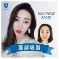 北京V雕面部吸脂 打造童颜幼幼脸 日记返现800元!