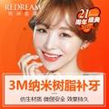 上海补牙 薇琳21周年感恩回馈 3M纳米树脂补牙 修复牙洞 色泽自然 强度高