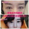 眼部整形失败修复 来美安双眼皮失败一级修复  专注眼整形及修复二十年