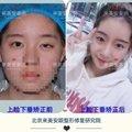 眼部失败修复 单侧中度上睑下垂修复 眯眯眼 大小眼 来美安专注眼部整形修复二十年