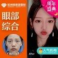 杭州韩式割双眼皮+开眼角眼综合 切开埋线三点双眼皮  重睑成形手术