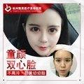 杭州自体脂肪+prp填充全面部 童颜双心脸 高存活率