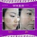 桂林红蓝光祛痘 轻松战痘拥有无痘嫩肌