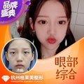 杭州格莱美贝塞尔曲线双眼皮 眼部综合整形割双眼皮失败修复 开内眼角韩式三点小切口