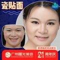 广州瓷贴面 曙光口腔 单颗 3D数字全瓷牙贴面 超薄贴面坚固耐用长久美白