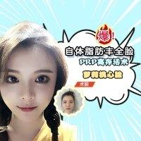 深圳全面部填充特惠价 高存活率 打造C型额头 让你有一张萌幼脸