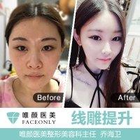 北京进口蛋白线V脸线雕提升 抗衰 瘦脸 不限根数 私信即送项目 到院送玻尿酸